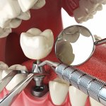 Illustration of a human tooth implant.